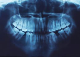 CEREC - Sedation Dentistry - Bonding - Bridges - Crowns - Dental Hygene - Teeth Whitening - Veneers - Dental Implants - Dentures - Exractions - Root Canals, Crown Lenghtening - Post Op Instructions - Framingham Dentists, Unique Dental of Framingham.