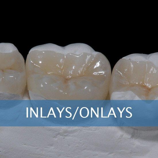 Crown Lenghtening - Post Op Instructions - Framingham Dentists, Unique Dental of Framingham.